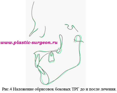 http://www.plastic-surgeon.ru/files/Statji/Desna/ris4.jpg
